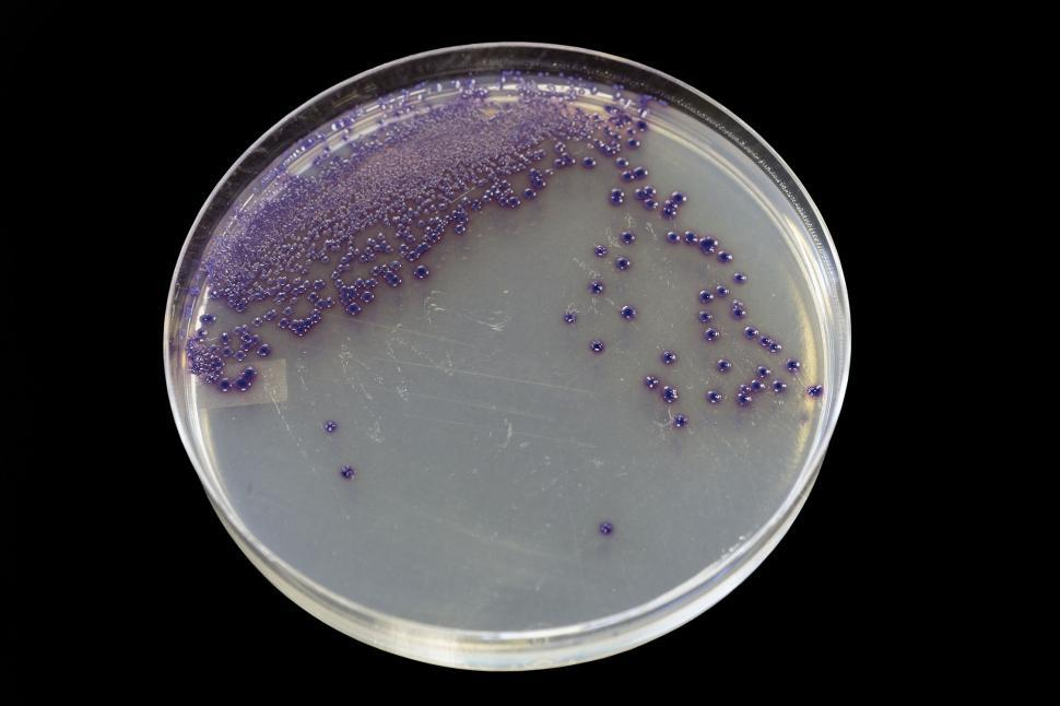 Download Free Stock HD Photo of Agar plate showing E. coli Online