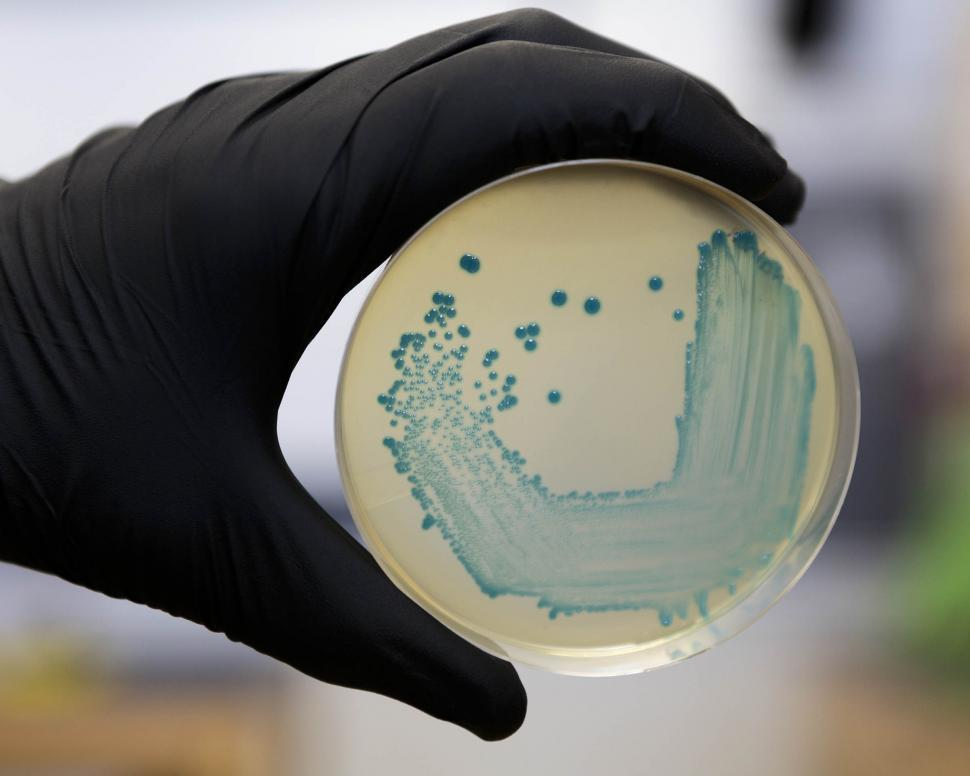 Download Free Stock HD Photo of Listeria monocytogenes  Online
