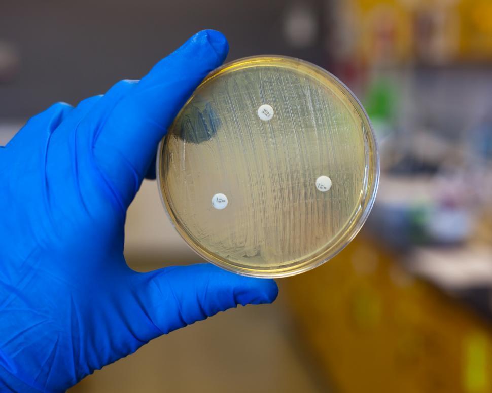 Download Free Stock HD Photo of Antibiotic resistances Online