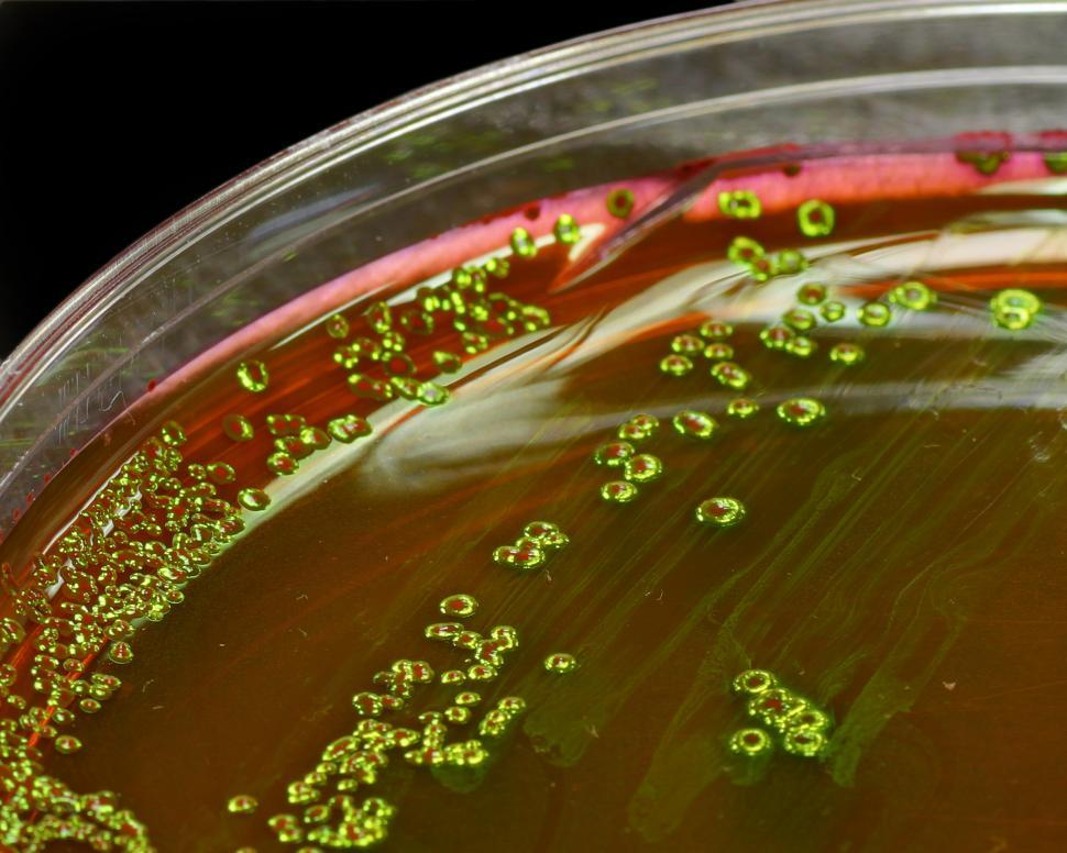 Download Free Stock HD Photo of Bacteria Online