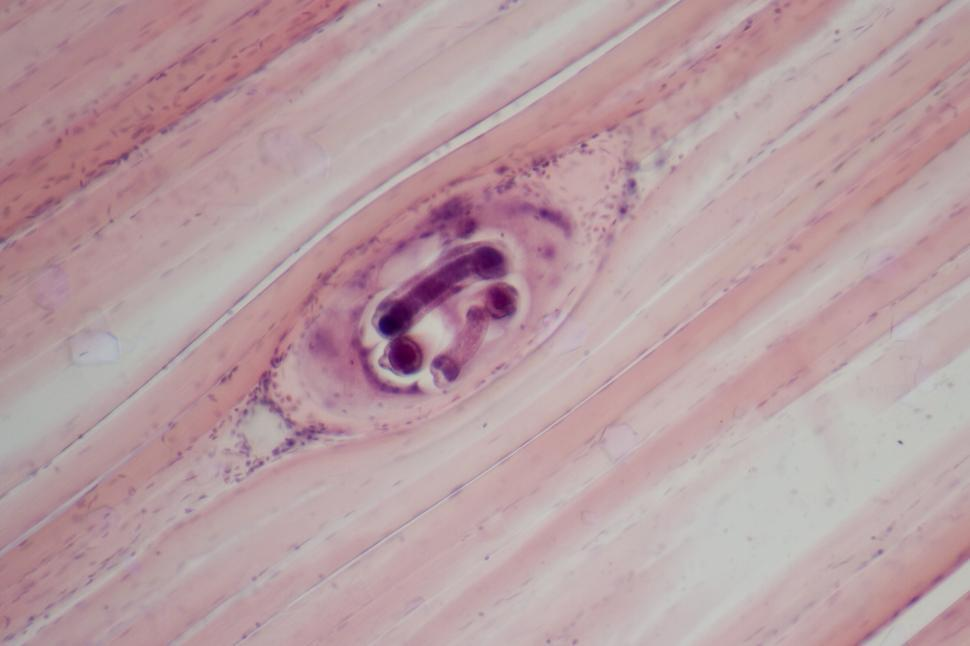 Download Free Stock HD Photo of Trichinella spiralis Online