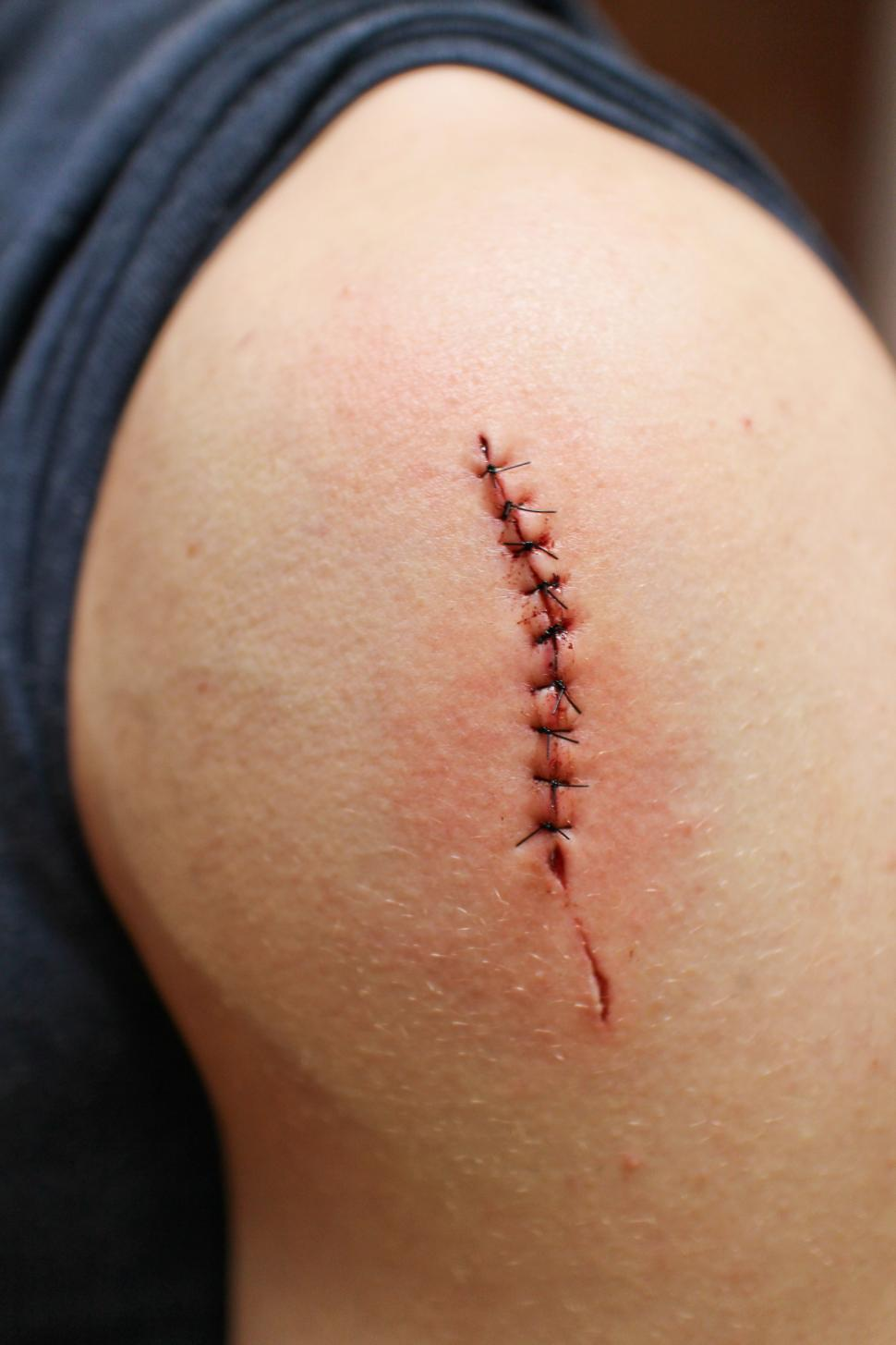Download Free Stock HD Photo of Stitches on wound Online