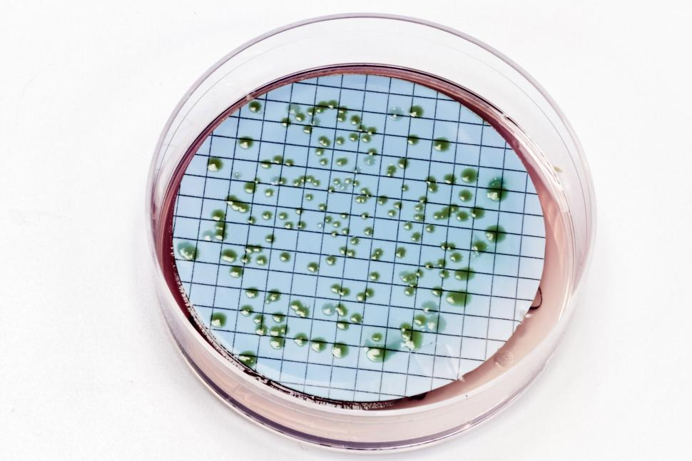 Download Free Stock HD Photo of Pseudomonas bacteria on agar plate Online