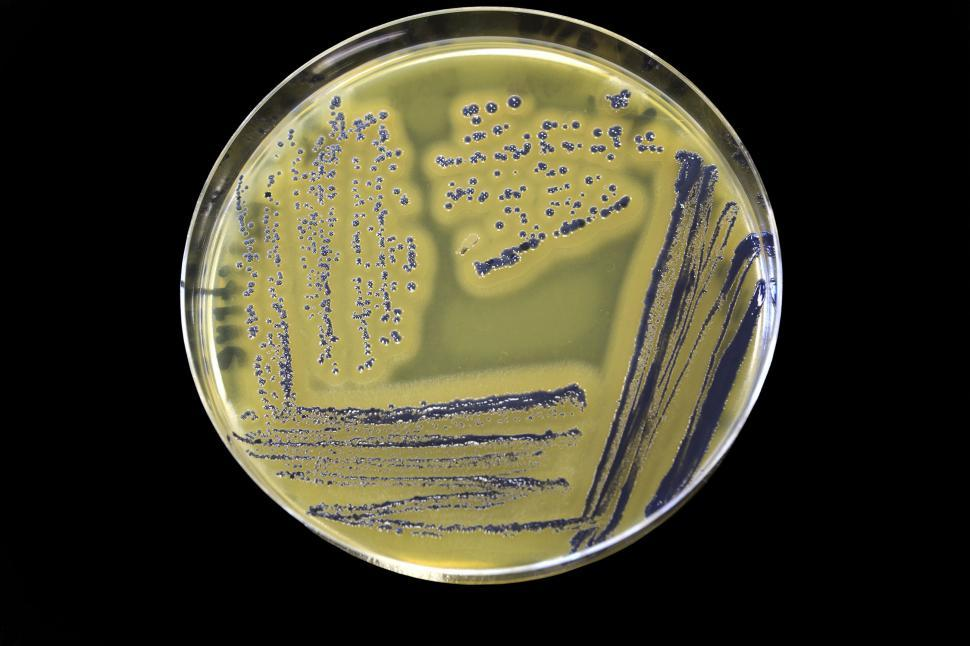 Download Free Stock HD Photo of Staphylococcus aureus Online