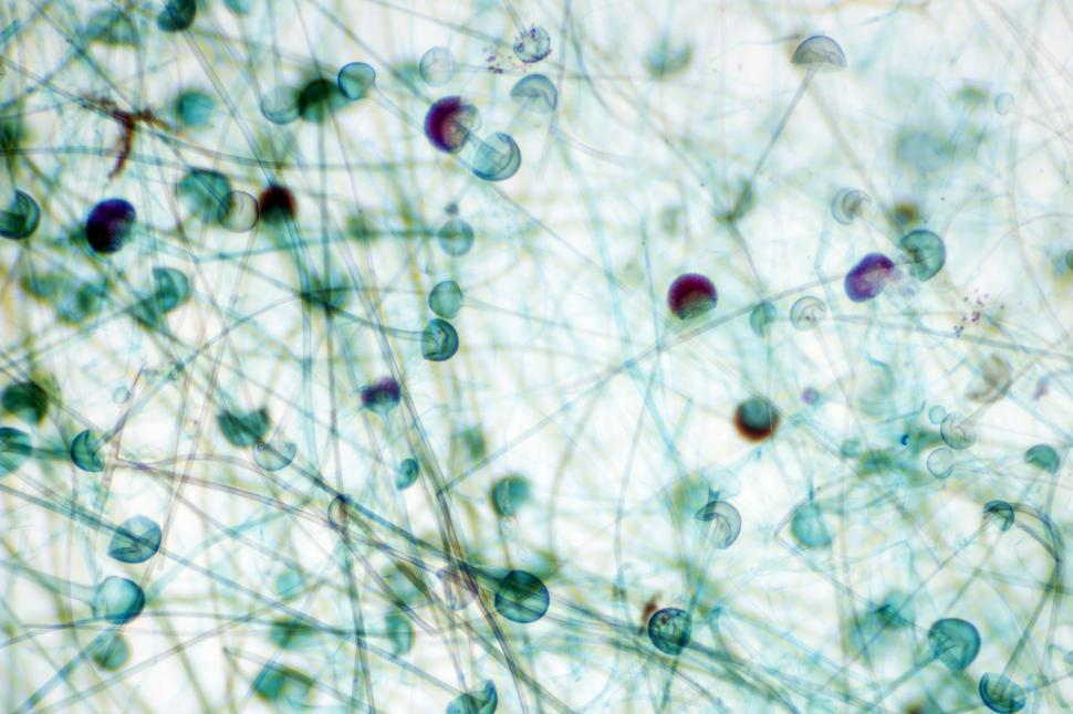 Download Free Stock HD Photo of Mold sporangium Online