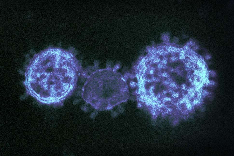 Download Free Stock HD Photo of Coronavirus Under Electron Microscope Online