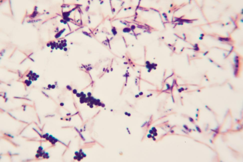 Download Free Stock Photo of Bacteria
