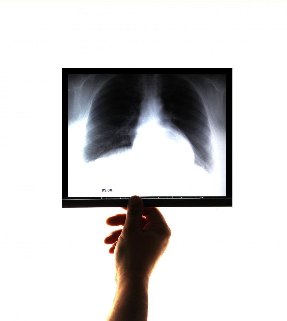 Download Free Stock Photo of Doctor examining and holding an x-ray image on his hand