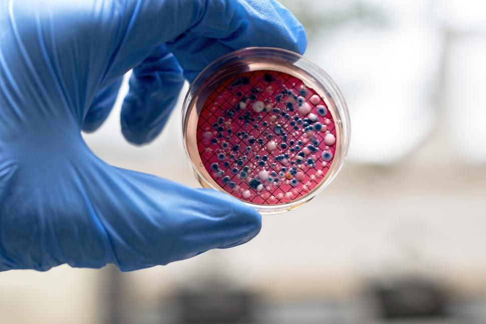 Download Free Stock HD Photo of Hand holding an agar plate containing Escherichia coli Online