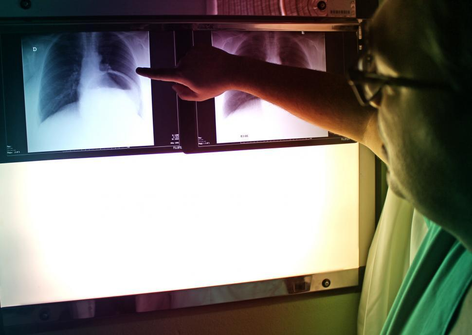 Download Free Stock HD Photo of Doctor Pointing to X-Ray Picture - Chest PA Radiography Online